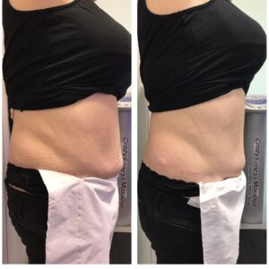 laser lipo weightloss bradford