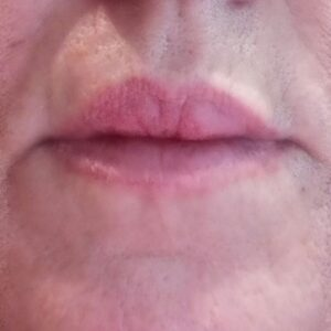 Dermal Fillers Before image