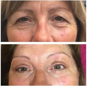 Reputable private clinic, Bradford, non-surgical Eyelid