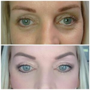 Reputable private clinic, Bradford, non-surgical Eyelid tightening