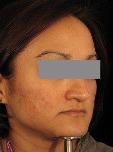eDermastamp, pigmentation, scars, stretch marks, blemishes, wrinkles