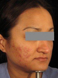 edermastamp regenerate, pigmentation, scars, stretch marks, blemishes, wrinkles
