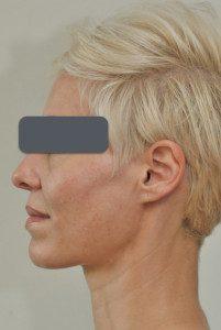 Arden clinic eds regenerate, pigmentation, scars, stretch marks, blemishes, wrinkles