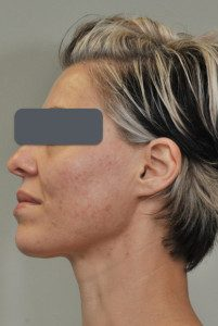 Arden clinic eds regenerate, pigmentation, scars, stretch marks, blemishes, wrinkles