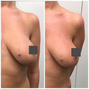 breast augmentation, breast lift, boob job