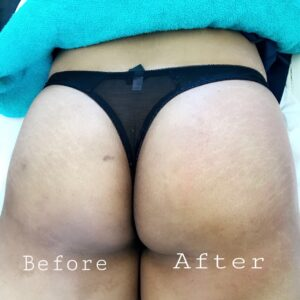 Brazilian buttlift non surgical