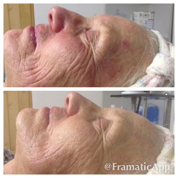 RF Face Before & After 8 sessions APPROVED