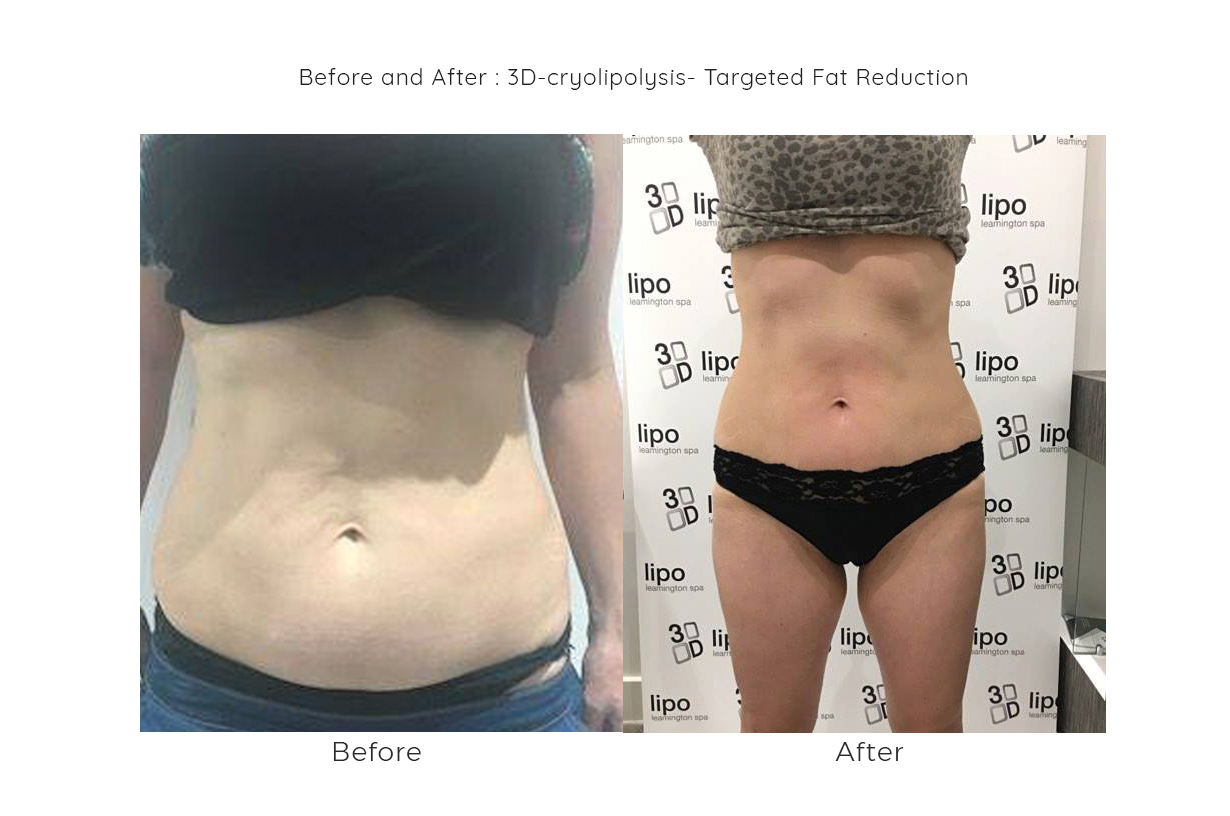 before and after 3d lipo treatments