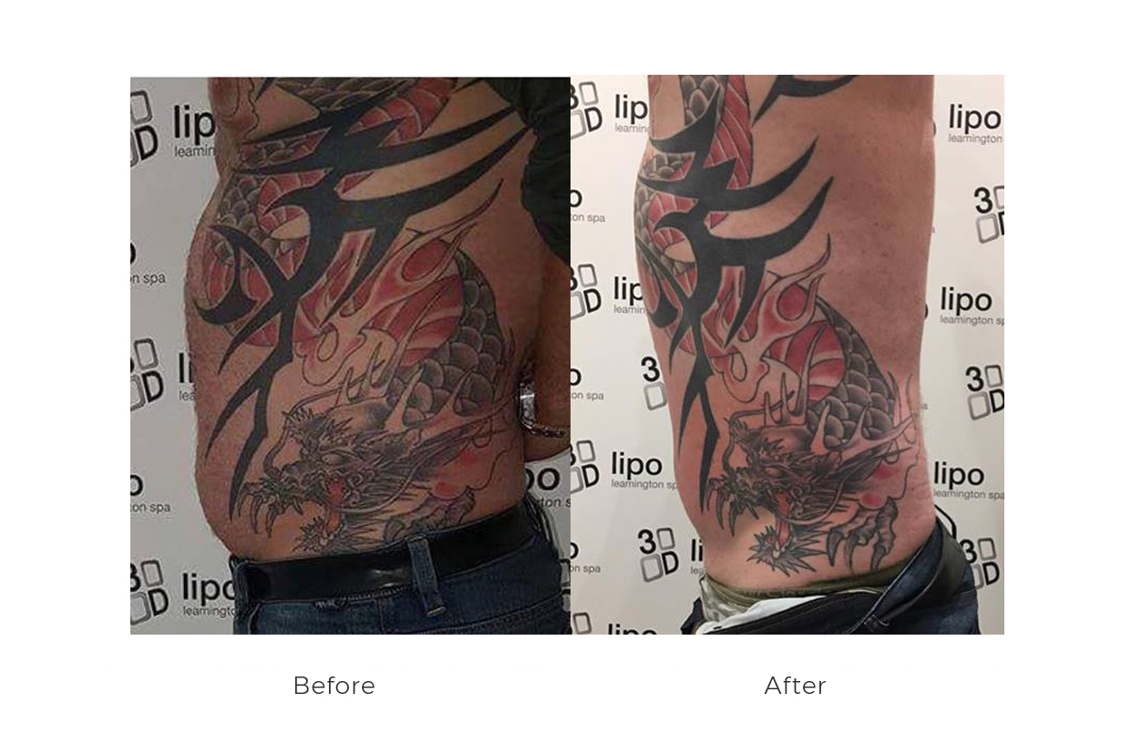 before and after 3d lipo