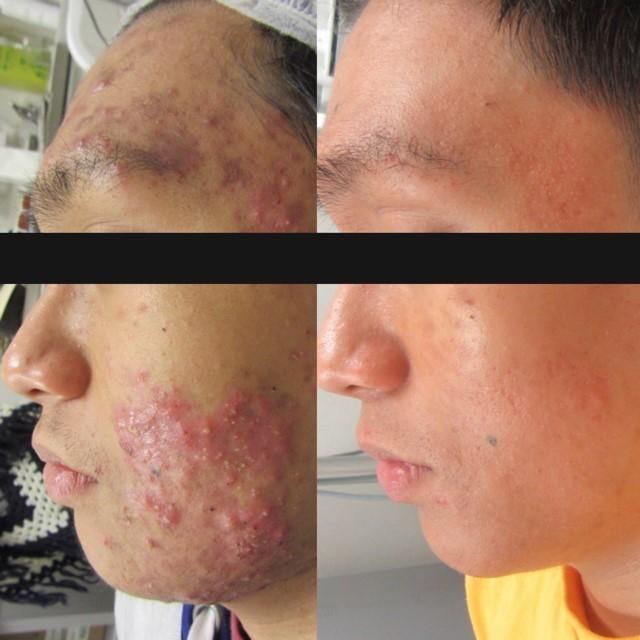 acne advice beauty blog