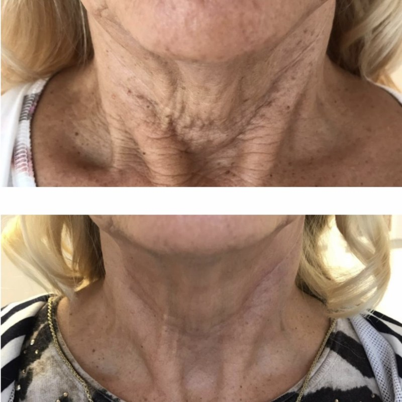 Jowl neck lift Leeds