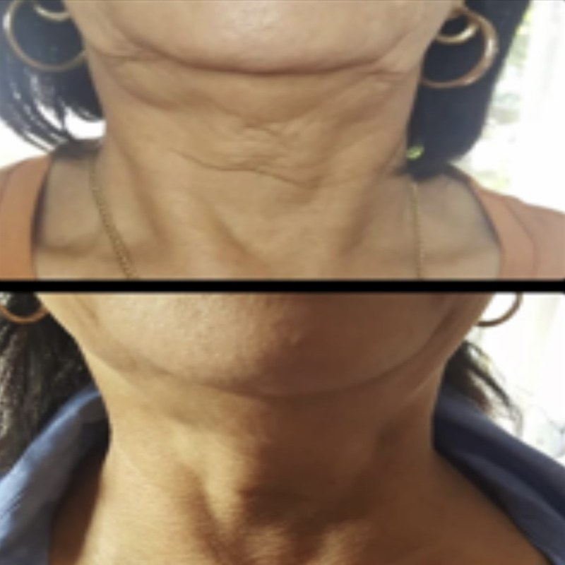 Jowl neck lift Bradford