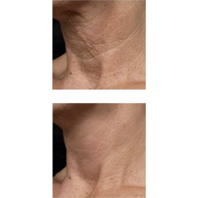 Jowl neck lift