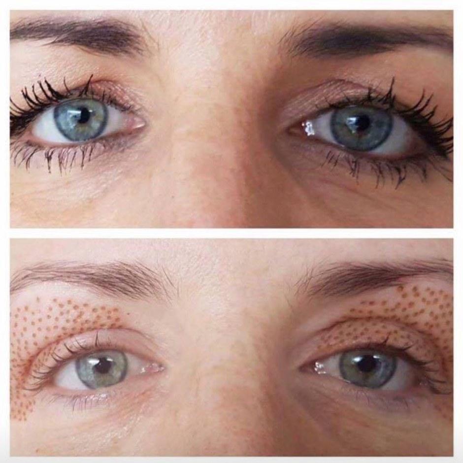 eyelid tightening
