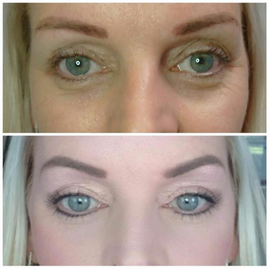 eyelid tightening west yorkshire