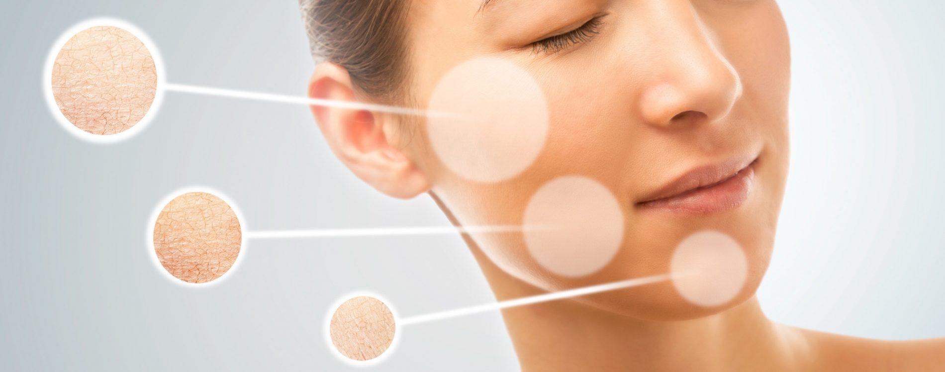 retinol vitamin a
