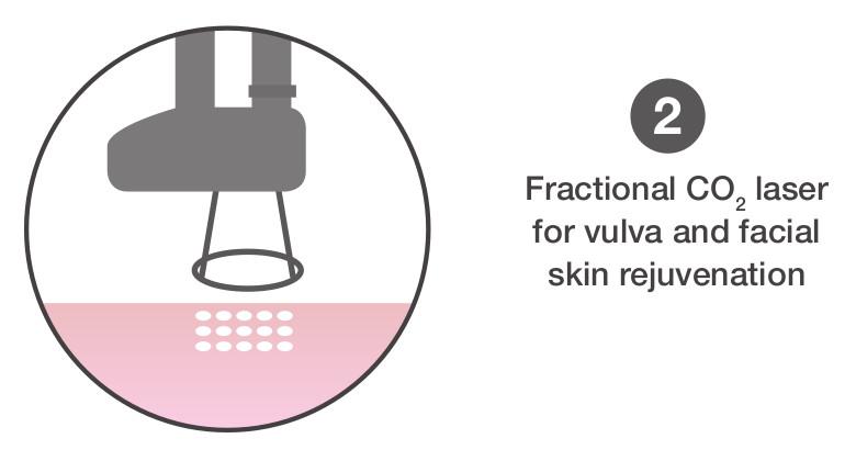 2 vulva laser