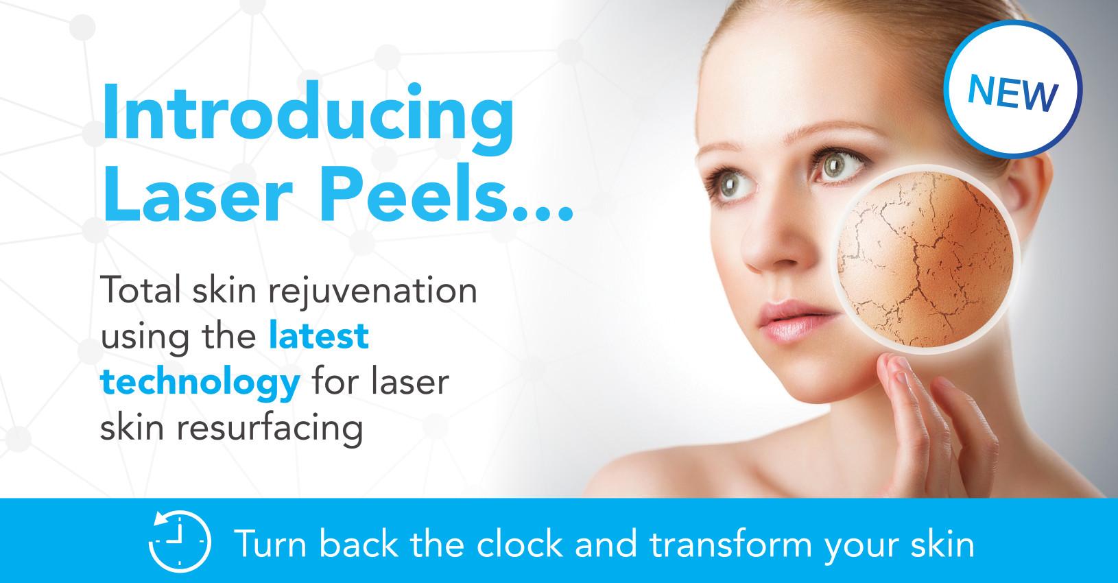 laser peels