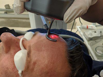 laser rejuvenation