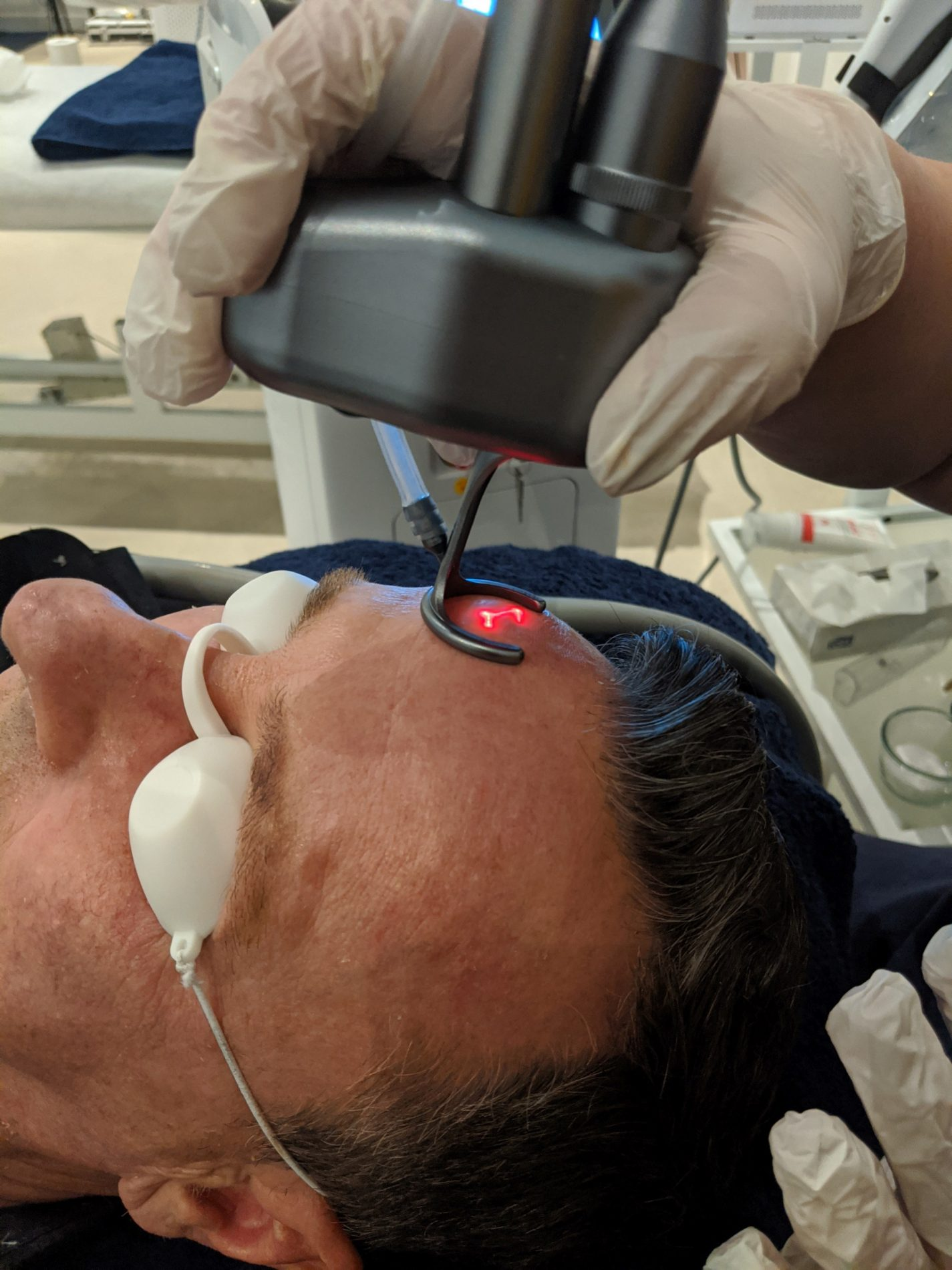 laser rejuvenation