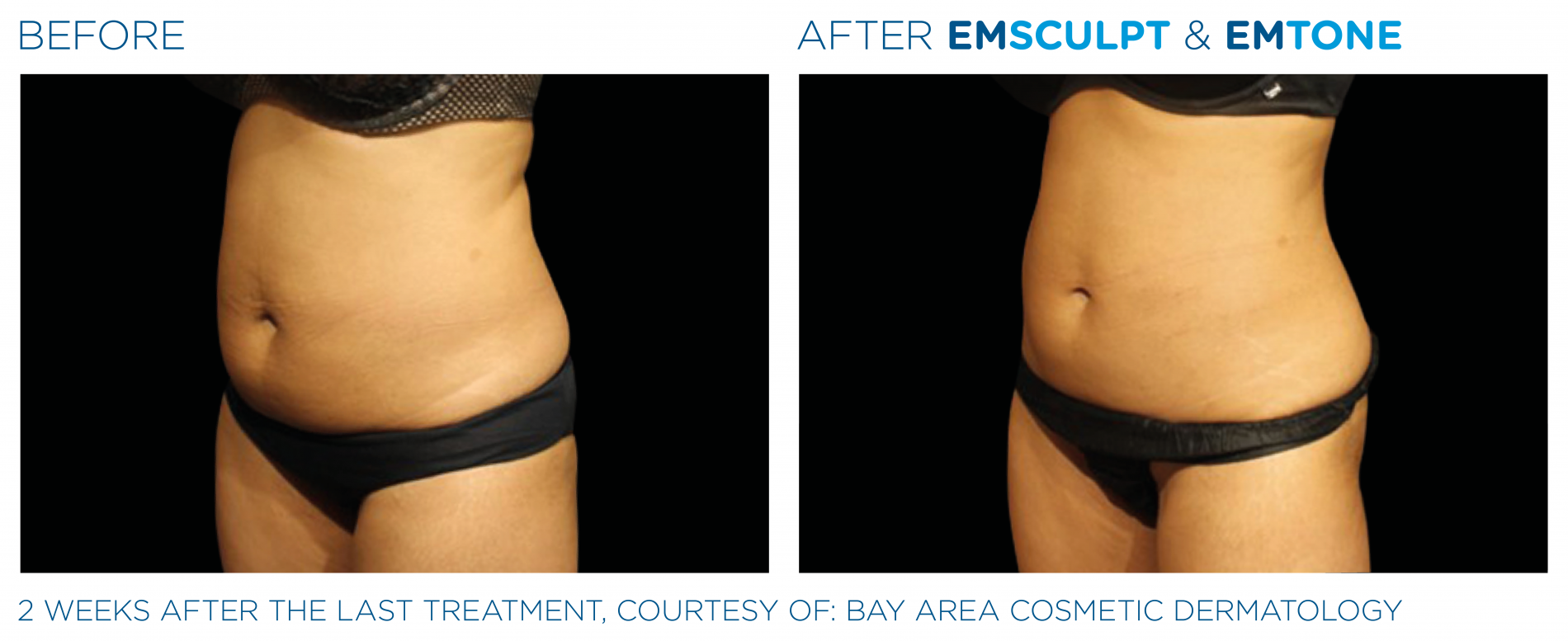 Emsculpt Emtone PIC Ba card female abdomen 001 EN100