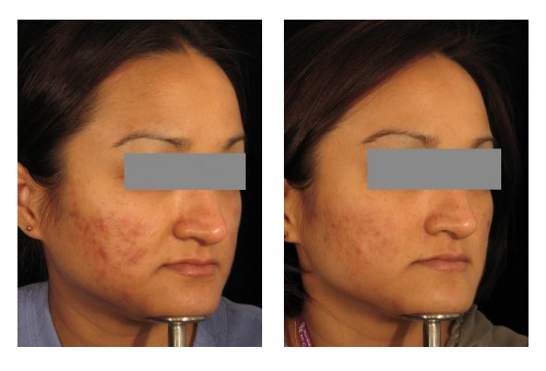acne before after 1