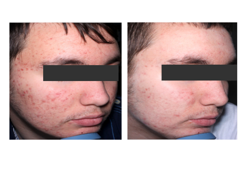 acne before after 2