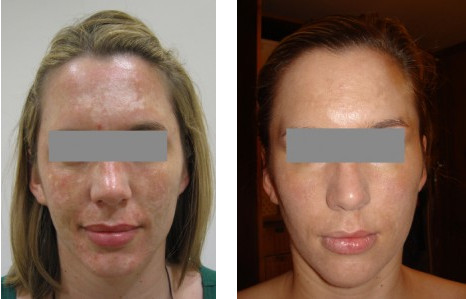 acne before after 3