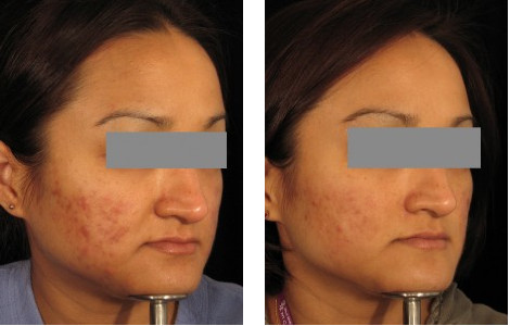redness before after