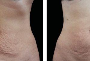 Loose skin/saggy skin